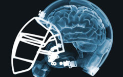 Concussion awareness hits home with NFL - and me