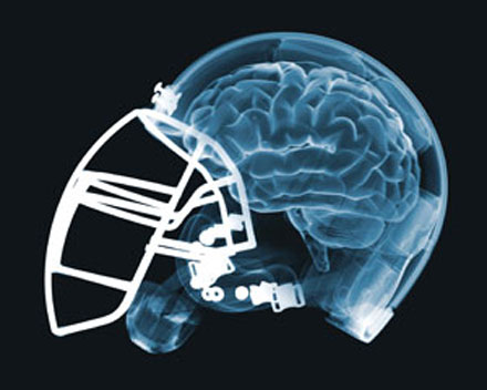 Concussion awareness hits home with NFL – and me