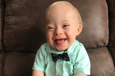 Column: Gerber Baby spreads awareness of Down syndrome community